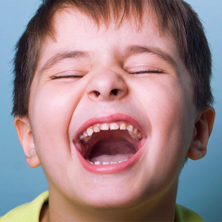 Frasi sul ridere